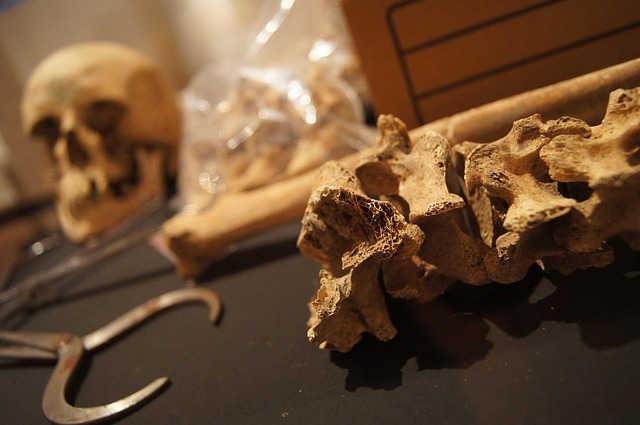Анатомический музей - достопримечательности Инсбрука